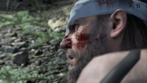 METAL GEAR SOLID V The Definitive Experience - náhled